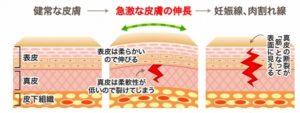 健康な皮膚と妊娠線、肉割れ線