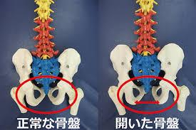 出産によって開いた骨盤